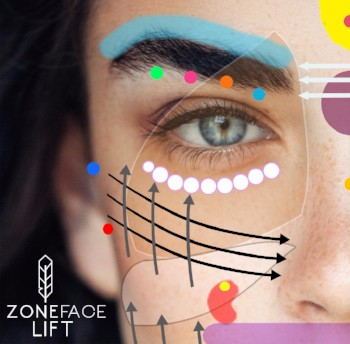 Zone Face lift image
